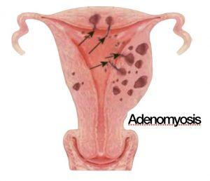 Heavy and Irregular Menstruation - Anthony Siow