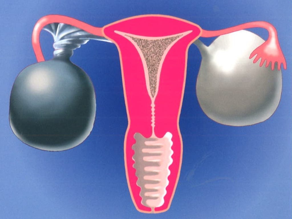 Ovarian Cysts - Anthony Siow